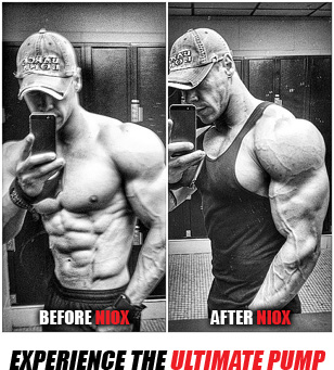 Niox Before and After